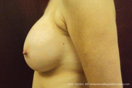 Philadelphia Breast Augmentation 8708 -  After Image 4