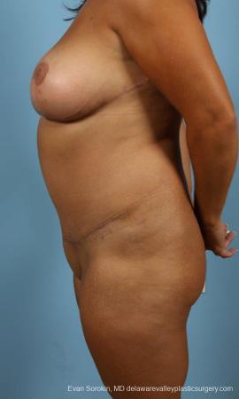 Philadelphia Mommy Makeover 9469 -  After Image 5