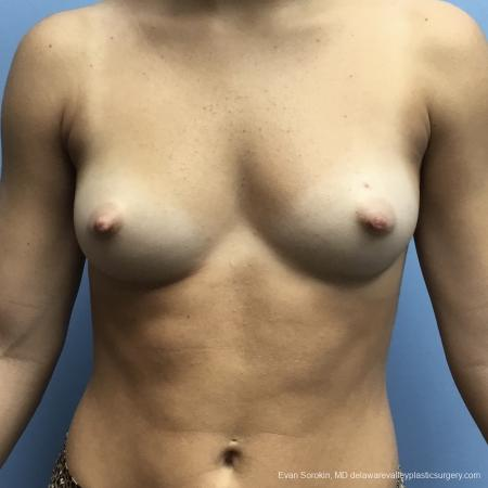 Breast Augmentation: Patient 165 - Before Image 1