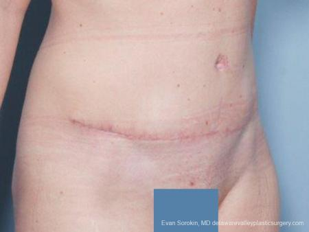 Philadelphia Abdominoplasty 9476 -  After Image 2