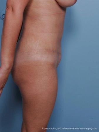 Philadelphia Abdominoplasty 9460 -  After Image 3