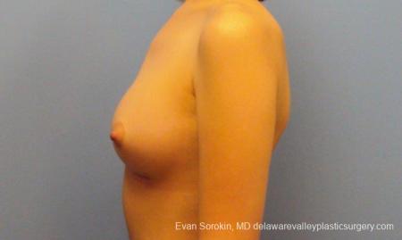 Philadelphia Breast Augmentation 10113 -  After Image 5
