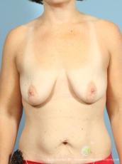 Philadelphia Mommy Makeover 8674 - Before Image