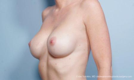 Philadelphia Breast Augmentation 9402 - Before Image 4