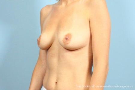 Philadelphia Breast Augmentation 9105 - Before Image 4