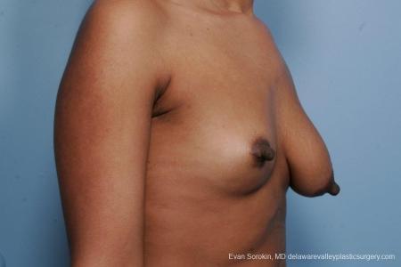 Philadelphia Breast Lift and Augmentation 8689 - Before Image 2