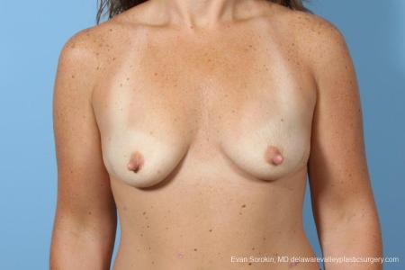 Philadelphia Breast Augmentation 8774 - Before Image 1