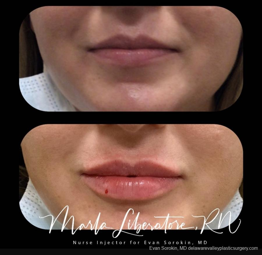 Lip Filler: Patient 2 - Before and After Image