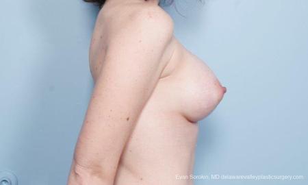 Philadelphia Breast Augmentation 9302 -  After Image 3
