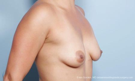Philadelphia Breast Augmentation 9297 - Before Image 2