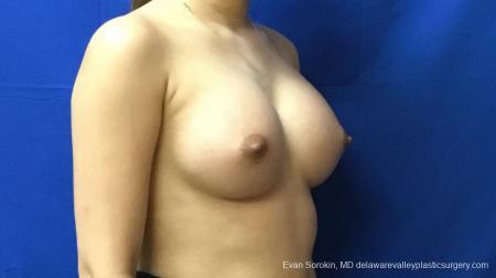 Philadelphia Breast Augmentation 13172 -  After Image 2