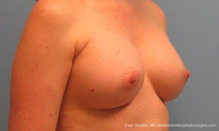 Philadelphia Breast Augmentation 9180 -  After Image 2