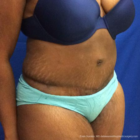 Philadelphia Abdominoplasty 10817 -  After Image 2