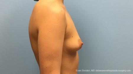 Philadelphia Breast Augmentation 12540 - Before Image 4