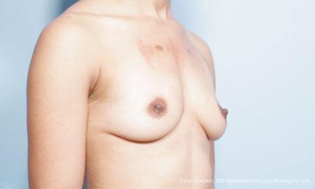 Philadelphia Breast Augmentation 9305 - Before Image 2
