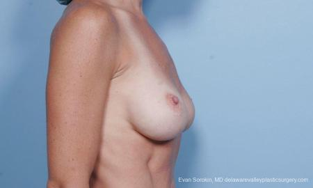 Philadelphia Breast Augmentation 9454 - Before Image 3