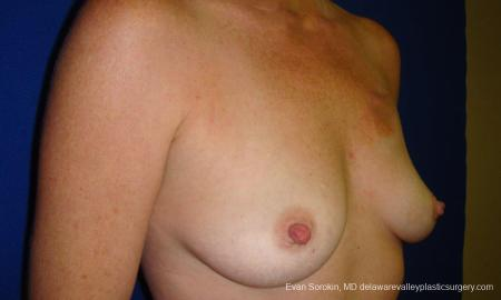 Philadelphia Breast Augmentation 9295 - Before Image 2