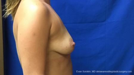 Philadelphia Breast Augmentation 13173 - Before Image 3
