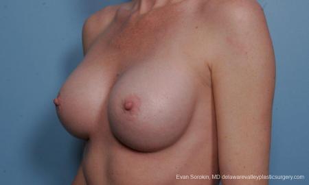 Philadelphia Breast Augmentation 9359 -  After Image 4