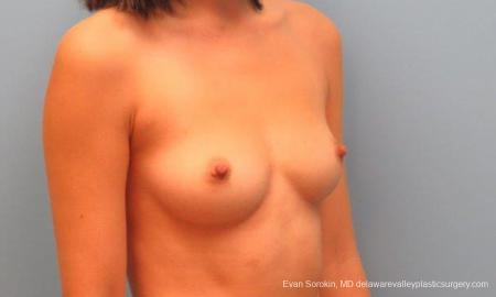 Philadelphia Breast Augmentation 9342 - Before Image 2