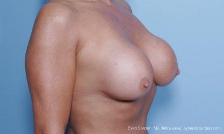 Philadelphia Breast Lift and Augmentation 9453 - Before Image 2