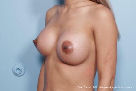 Philadelphia Breast Augmentation 9106 -  After Image 4