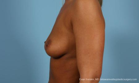 Philadelphia Breast Augmentation 9404 - Before and After Image 5