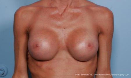 Philadelphia Breast Augmentation 8656 -  After Image 1