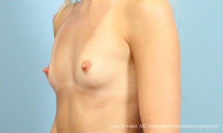 Philadelphia Breast Augmentation 9409 - Before Image 4