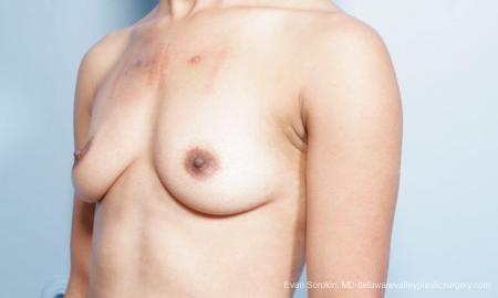 Philadelphia Breast Augmentation 9305 - Before Image 4