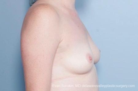 Philadelphia Breast Augmentation 8795 - Before Image 4
