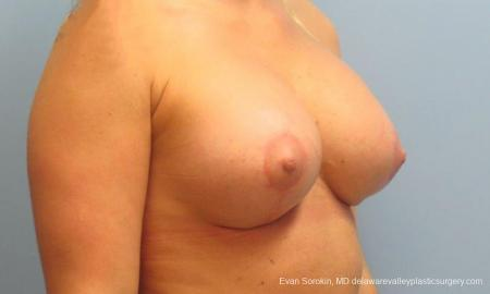 Philadelphia Breast Lift and Augmentation 9370 -  After Image 4