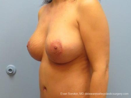 Philadelphia Breast Lift and Augmentation 8671 -  After Image 3