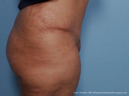 Philadelphia Abdominoplasty 9462 -  After Image 3