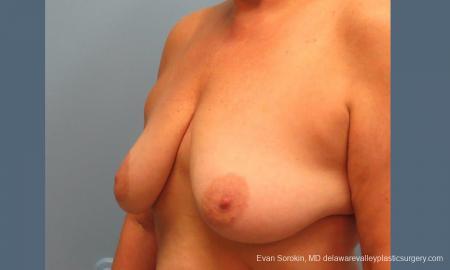 Philadelphia Breast Lift and Augmentation 9431 - Before Image 4