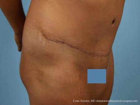 Philadelphia Abdominoplasty 9471 -  After Image 2