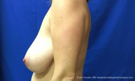 Philadelphia Breast Reduction 12512 - Before and After Image 5