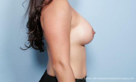 Philadelphia Breast Augmentation 9297 -  After Image 3