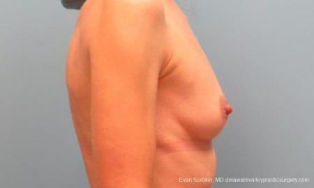 Philadelphia Breast Augmentation 9368 - Before Image 3