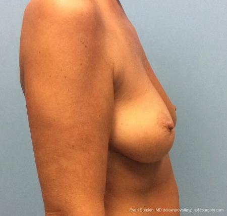 Philadelphia Breast Lift and Augmentation 13068 - Before Image 3