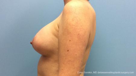 Philadelphia Breast Augmentation 13181 -  After Image 5