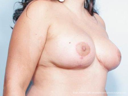 Philadelphia Breast Reduction 9441 -  After Image 2