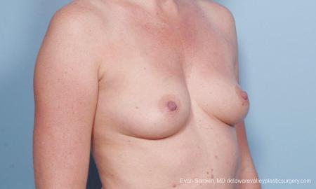 Philadelphia Breast Augmentation 9178 - Before Image 2