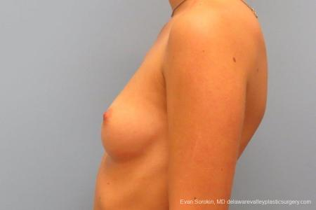 Philadelphia Breast Augmentation 8666 - Before and After Image 5
