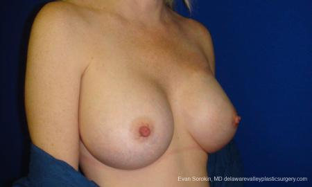 Philadelphia Breast Augmentation 9295 -  After Image 2