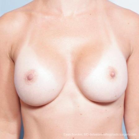 Philadelphia Breast Augmentation 8652 -  After Image 1