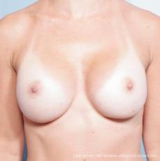 Philadelphia Breast Augmentation 8652 - After Image