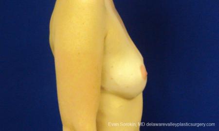 Philadelphia Breast Augmentation 8777 - Before Image 4