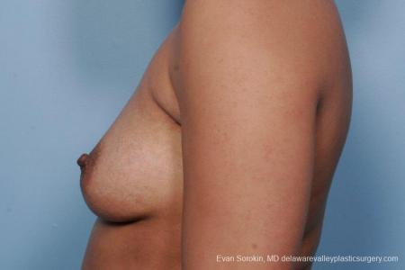 Philadelphia Breast Augmentation 9387 - Before and After Image 5