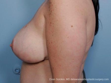 Philadelphia Breast Reduction 8703 -  After Image 4